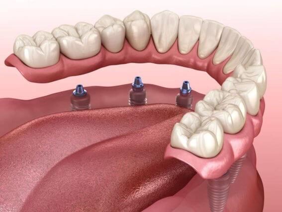 Mandibuläre Prothese mit Kaugummi unterstützt durch Implantate