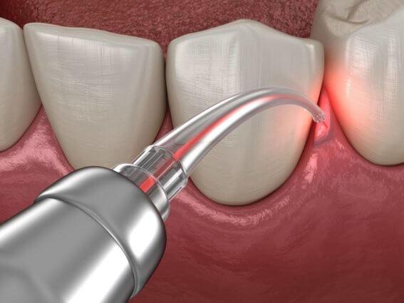 Laserbehandlung einer Zahnfleischerkrankung